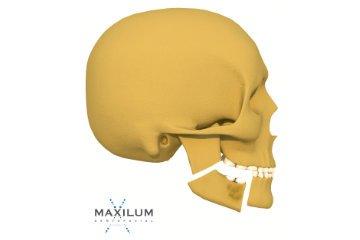 Cirugía maxilofacial Málaga