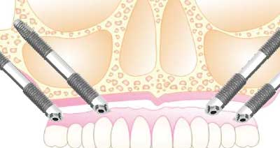 Implantes cigomaticos