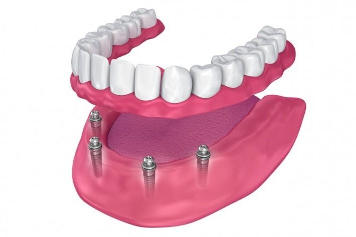 precio implantes dentales malaga